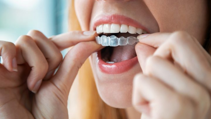 You Smile In Smile - All you need for your dental health